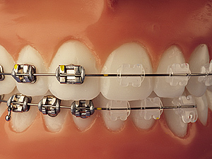 Cronauer Amp Angelakis Orthodonticsyou Have Choices When