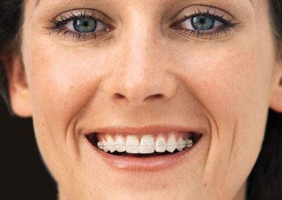 Cronauer Amp Angelakis Orthodonticsbraces For Adults