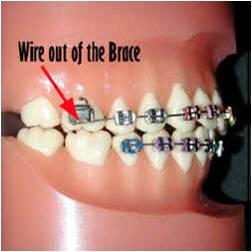 Cronauer & Angelakis OrthodonticsDamaged Braces? We Can ...