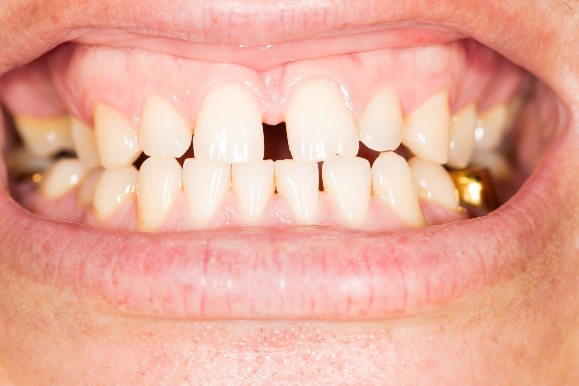 Cronauer Amp Angelakis Orthodonticswhat Can I Do About Gaps